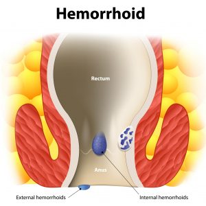 How to Know If You Have Hemorrhoids and the Cure to Pruritus Ani